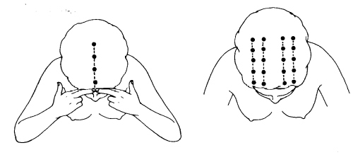 kopfschmerzen am hinterkopf