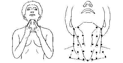 hals linke seite schmerzen